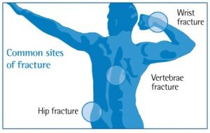 fracture osteoporosis