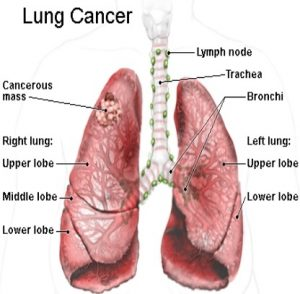 20 symptoms of lung cancer in men and females - drhealthbenefits, Human Body
