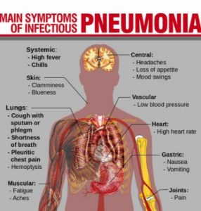 18 symptoms of pneumonia in children and elderly, Skeleton