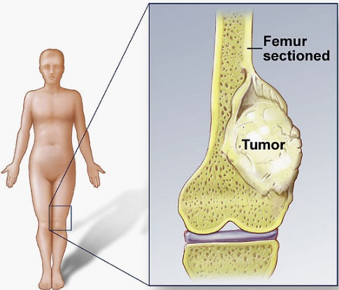 45 Symptoms of Bone Cancer Generally and From 6 Types